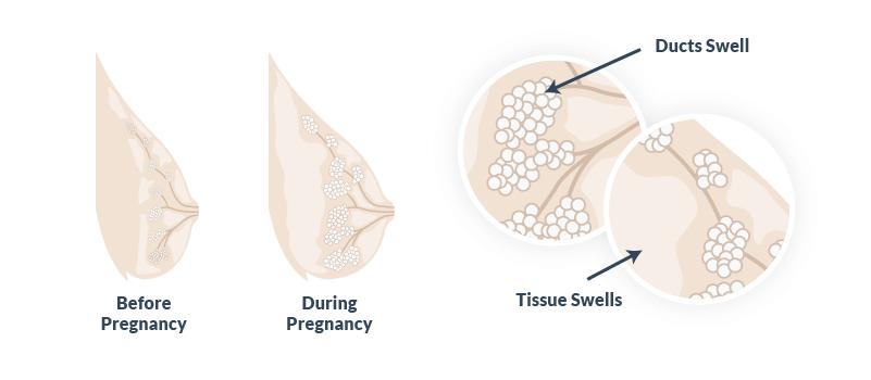 Sore Breasts In Pregnancy