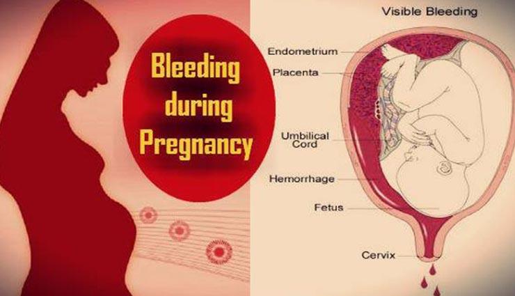 Bledding During pregnancy