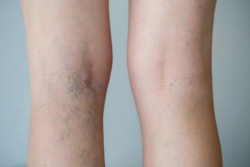 varicose vein in pregnancy treatment